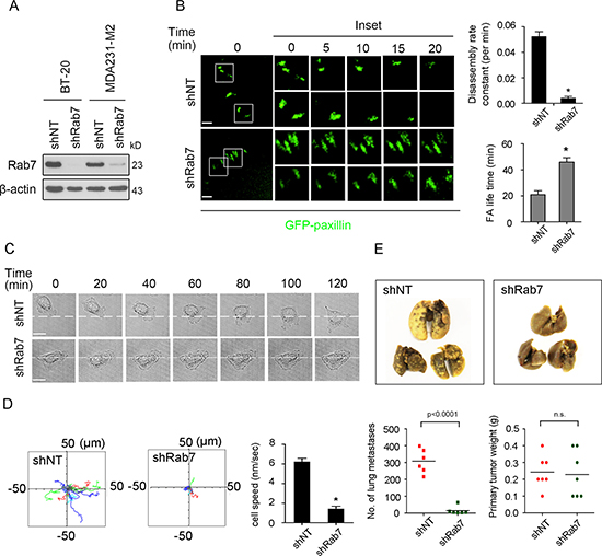 Knockdown of Rab7 decreases focal adhesion turnover, cell migration and progression to metastasis.