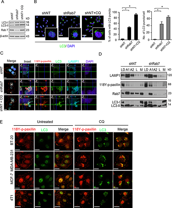 Knockdown Rab7 mimics the effect of chloroquine to localize paxillin into autophagolysosomes.
