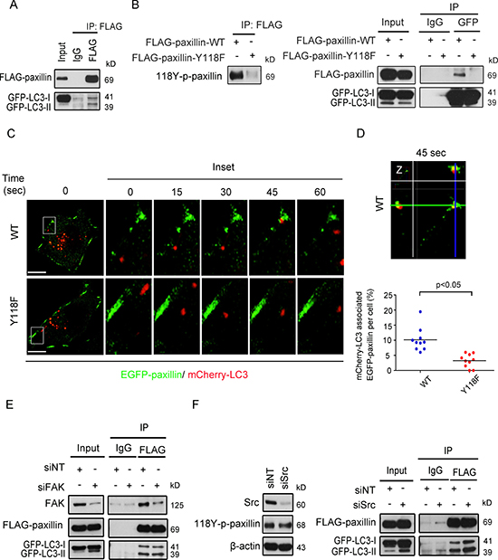 Tyrosine 118 phosphorylation of paxillin modulates its association with the autophagic marker LC3 at cell plasma membrane protrusions.