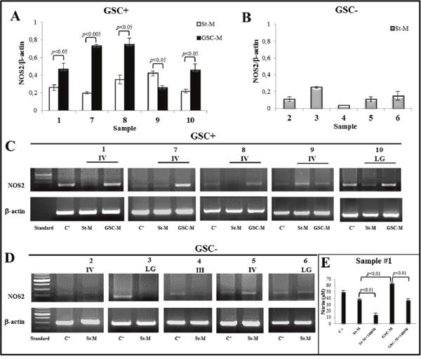 NOS2 expression and activity in primary cell cultures.