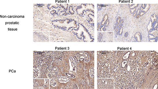 The oxytocin expression in no-carcinoma prostate tissue and the PCa tissue.