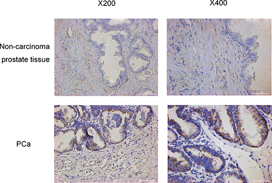 The oxytocin receptor expression in no-carcinoma prostate tissue and the PCa tissue.