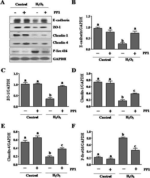 PP1 treatment preserves expression of E-cadherin, ZO-1, claudin-1 and claudin-4 in cultured renal tubule epithelial cells exposed to oxidative stress.