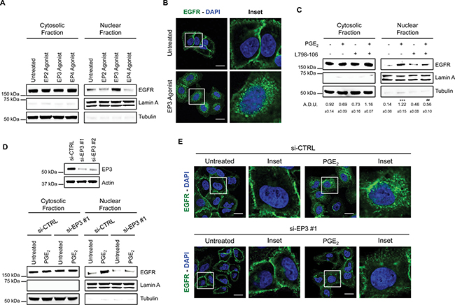 PGE2 promotes EGFR nuclear translocation via EP3 receptor.