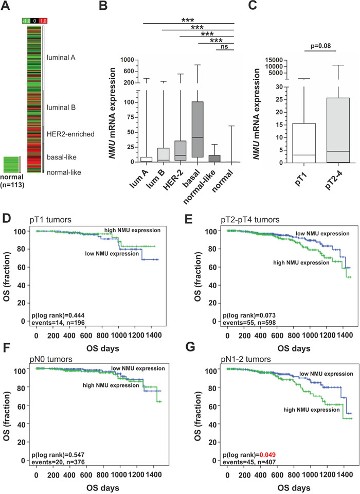 NMU mRNA expression in an independent breast cancer cohort and its clinical impact in advanced tumor stages.