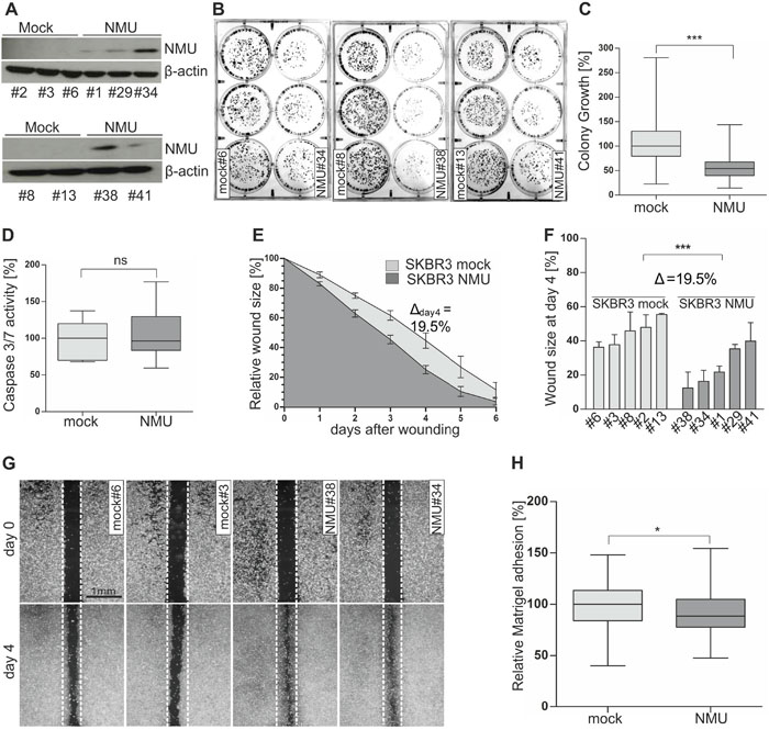 Ectopic NMU expression in NMUR2-positive SKBR3 cells reduces colony growth while promoting a motile phenotype.