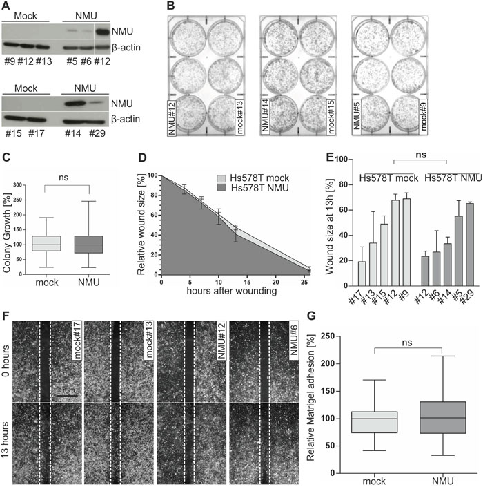 Ectopic NMU expression has no effect on NMUR2-negative Hs578T cells.