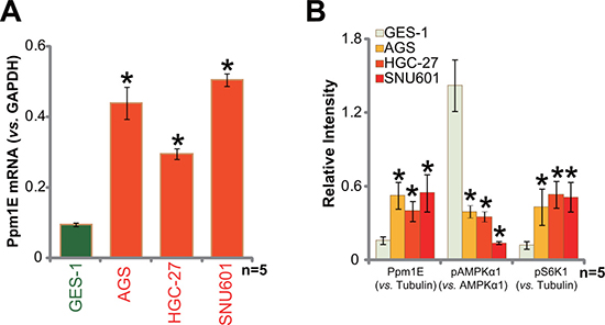 Ppm1E upregulation in human gastric cancer cells.