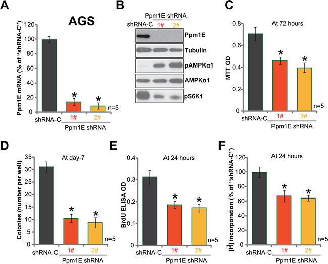 Ppm1E silence induces AMPK activation and inhibits gastric cancer cell survival and proliferation.