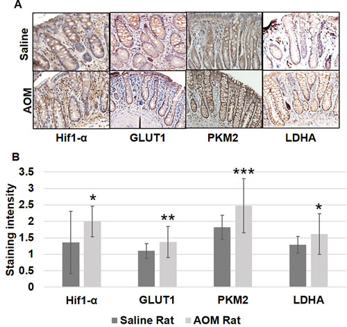 Metabolic changes in uninvolved mucosa by IHC in AOM model.