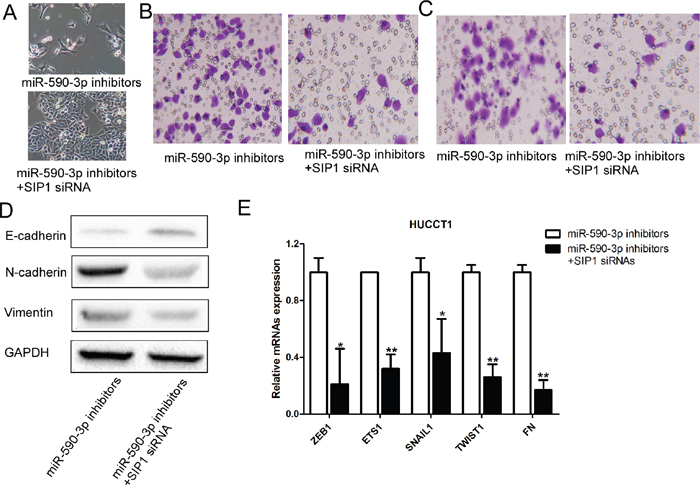 Loss-of-function studies showed that SIP1 siRNA abrogate the of miR-21 inhibitors-induced EMT, cell migration and invasion in ICC in vitro.