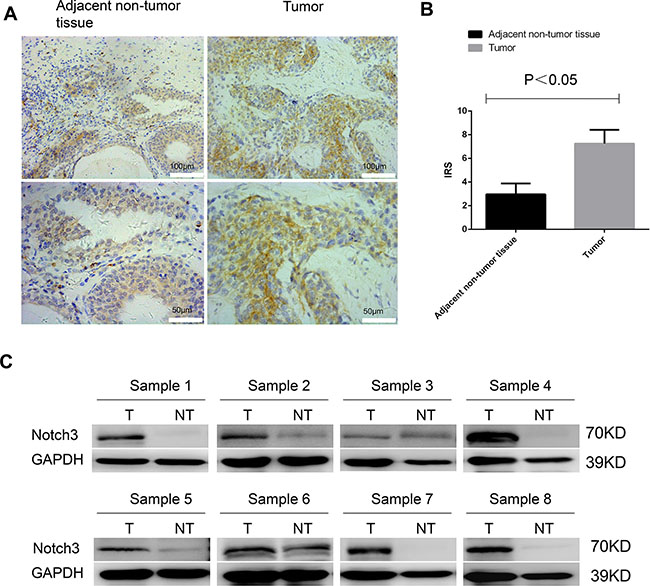 Notch3 is highly expressed in urothelial cancer.