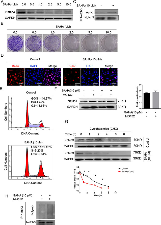 The HDAC inhibitor SAHA decreases Notch3 stability in urothelial cancer cells.