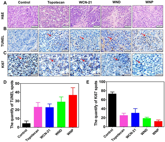 Immunohistochemical analysis of tumor tissues treated with 5 doses injection of Topotecan (4 mg/kg), WCN-21 (4 mg/kg), WND (4 mg/kg WCN-21), or WNP (4 mg/kg WCN-21).