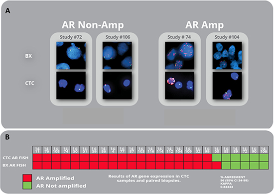 AR amplification in matched CTCs and biopsies from mCRPC patients.