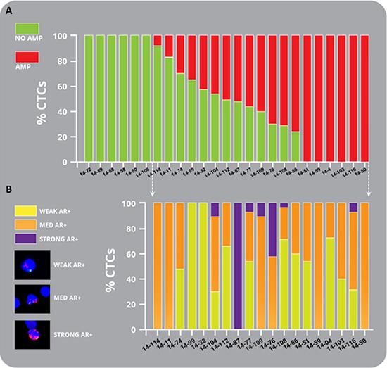 Heterogeneity of amplification in mCRPC patient CTCs.