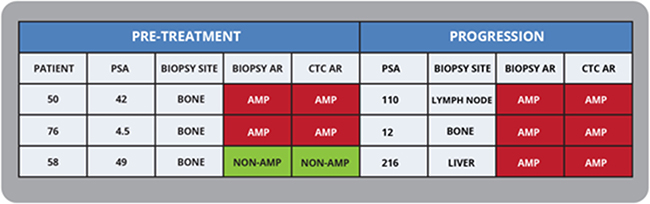 Documenting AR Amplification status with sequential CTC and biopsies in mCRPC patients.