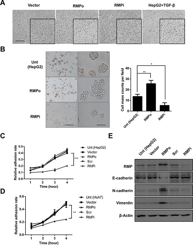 RMP promotes the progression of EMT in vitro.