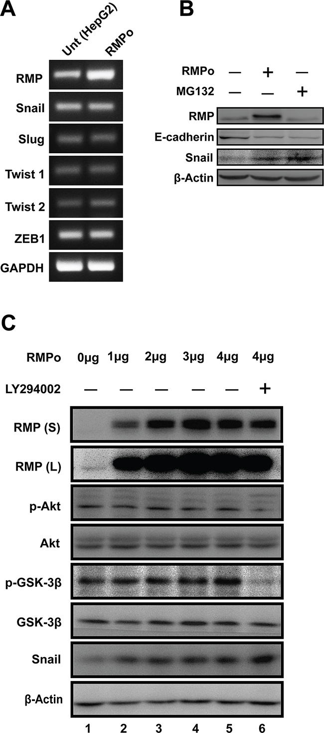 RMP-mediated EMT is dependent on stabilization of Snail in HCC cells.