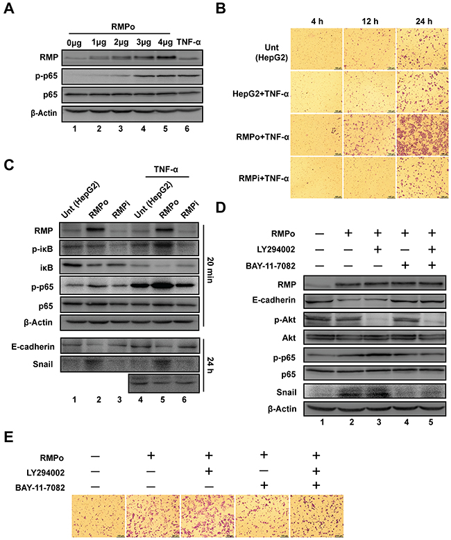 NF-κB, but not Akt is required for RMP-mediated stabilization of Snail.