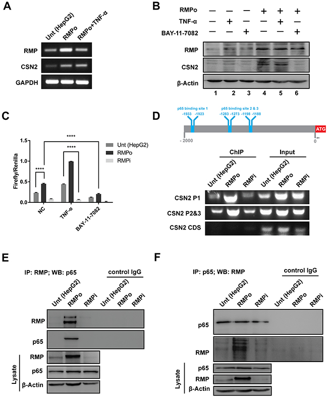 RMP up-regulated CSN2 expression through nuclear translocation of NF-κB.