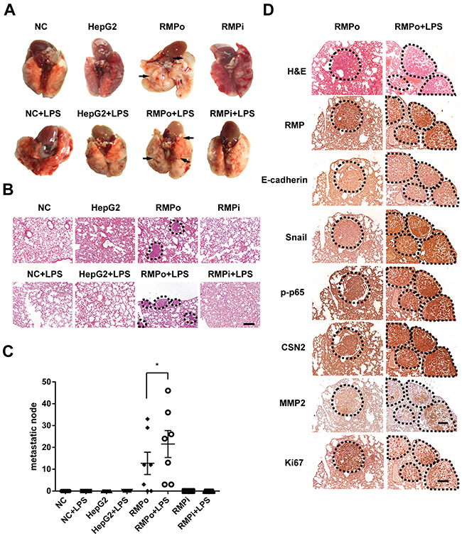 RMP activates the metastasis of HCC cells through TNF-α/NF-κB pathway in vivo.