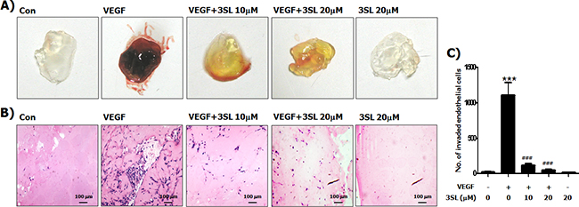 Inhibitory effect of sialyllactose on VEGF-induced in vivo neovascularization.