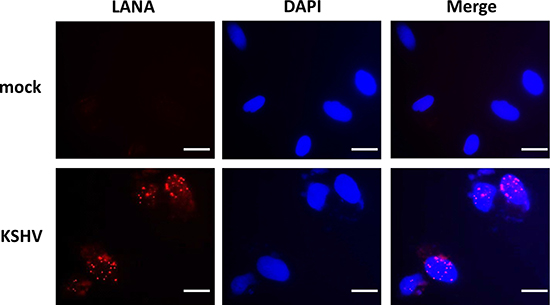 Establishment of latent KSHV infection within SiHa cells.