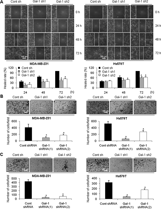 Effect of galectin-1 silencing on migration and invasion of human breast cancer cells.