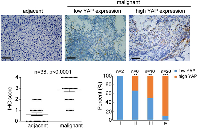 High expression of YAP in neuroblastoma correlated with tumor grade.
