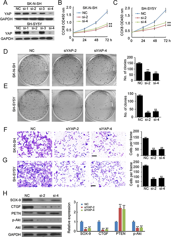Knockdown of YAP inhibits the proliferation and invasion of neuroblastoma.