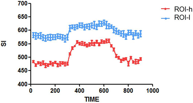 Time-SI curves for the ROIs-h and ROIs-l in one representative brain tumor.