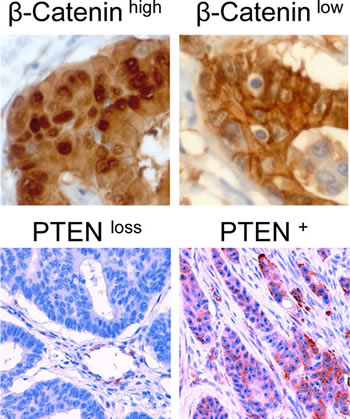 Immunohistochemical staining of colon carcinomas using anti-β-Catenin antibody (400-fold magnification) or anti-PTEN antibody (200-fold magnification).