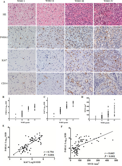 P4HA1 is overexpressed in high-grade gliomas and is correlated with Ki67 and MVD in human glioma specimens.