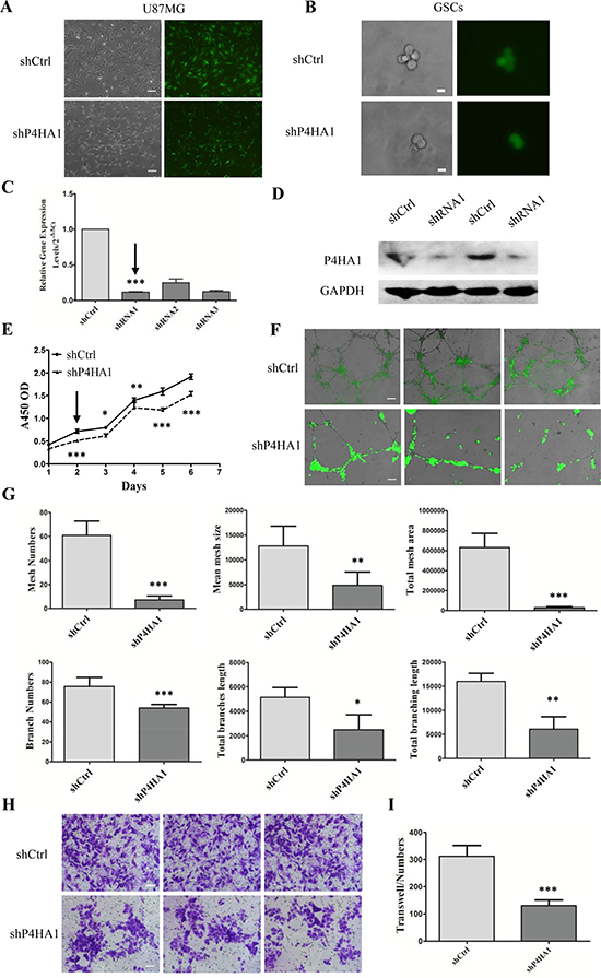Knockdown of P4HA1 inhibits GSCs proliferation, tube formation and migration in vitro.