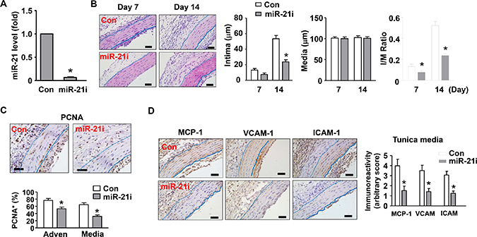 Effects of a miR-21 antagomir (miR-21i) on neointima formation in vivo.