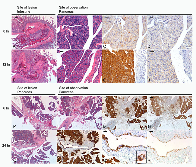 Morphology of lesions and their effect on the pancreas.