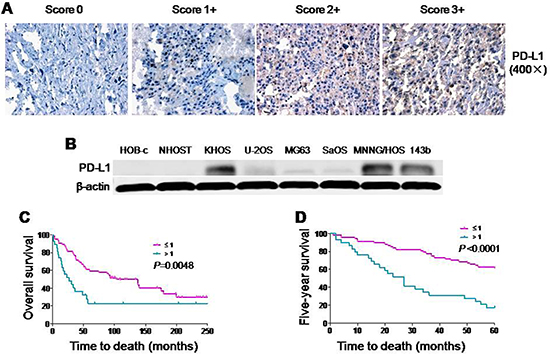 Expression of PD-L1 protein in osteosarcoma cell lines and osteosarcoma patient tissues.
