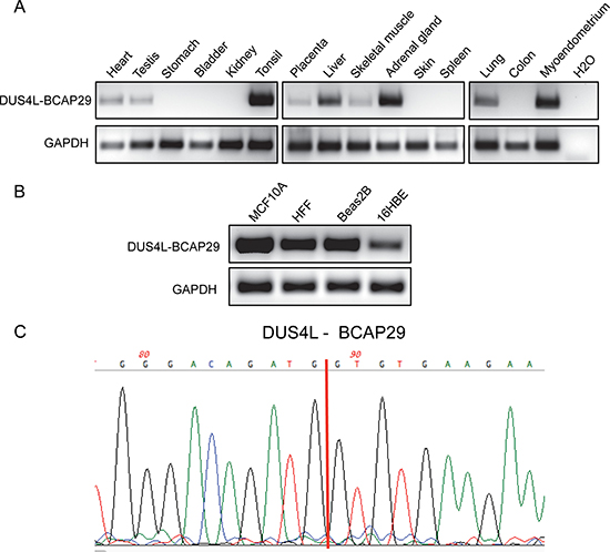 Detection of DUS4L-BCAP29 in non-cancer human tissues and cell lines.