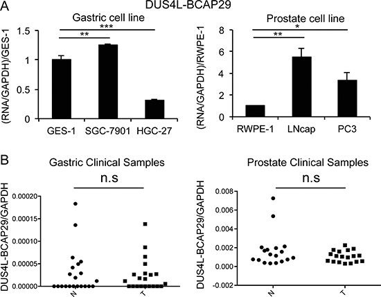 Quantification of DUS4L-BCAP29 expression in gastric and prostate tissues and cell lines.