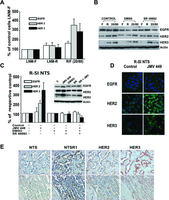 NTS regulation enhanced HER2, and HER3 basal expression in human lung cancer cell lines.
