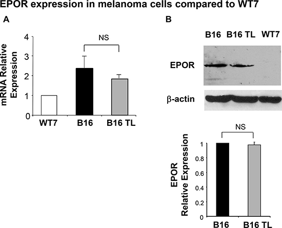 Expression of EPOR in B16 cells.