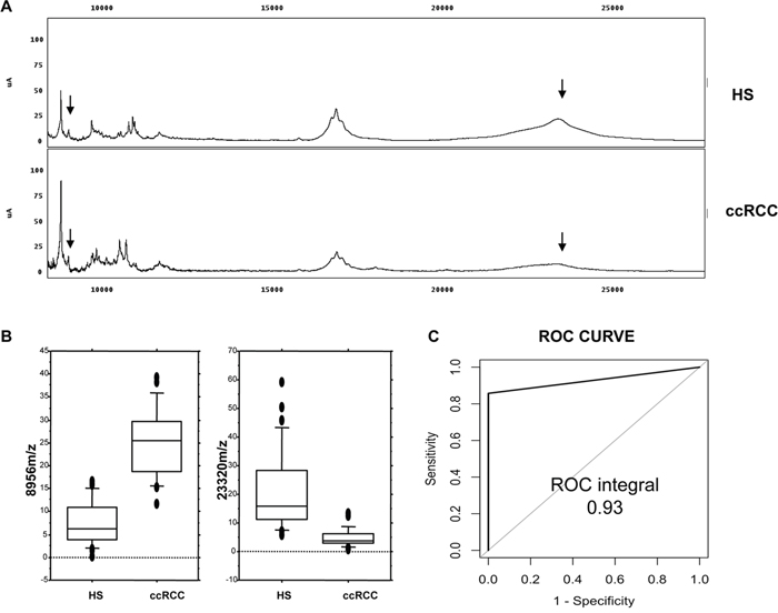 Recognition of ccRCC by urine protein profiling.