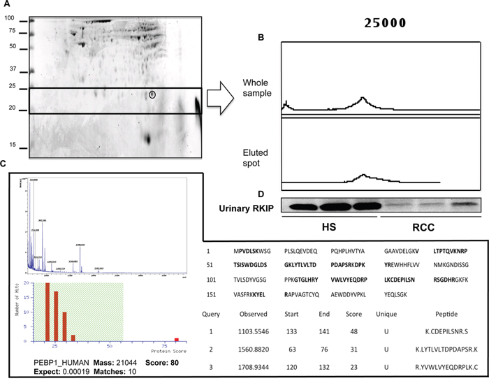 Purification and identification of RKIP.