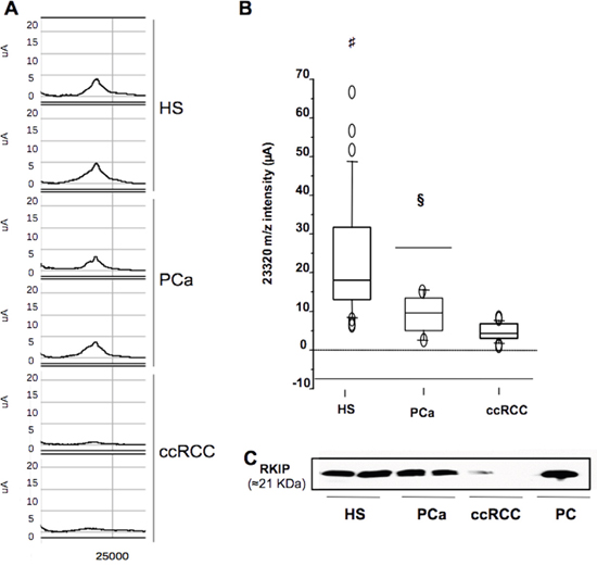 Selective reduction of urinary RKIP in ccRCC.