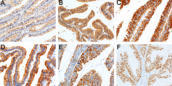 Expression of immunohistochemical markers in tumor cells.