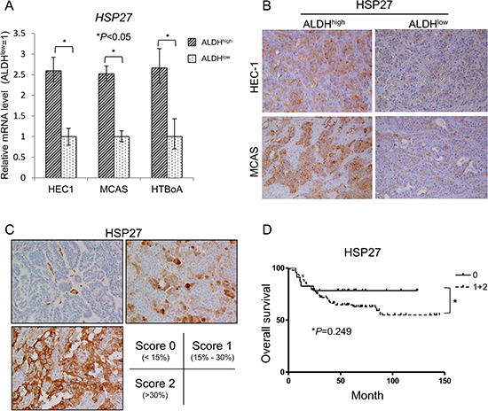 HSP27 expressed in ALDH1high cells derived from endometrial and ovarian carcinoma.
