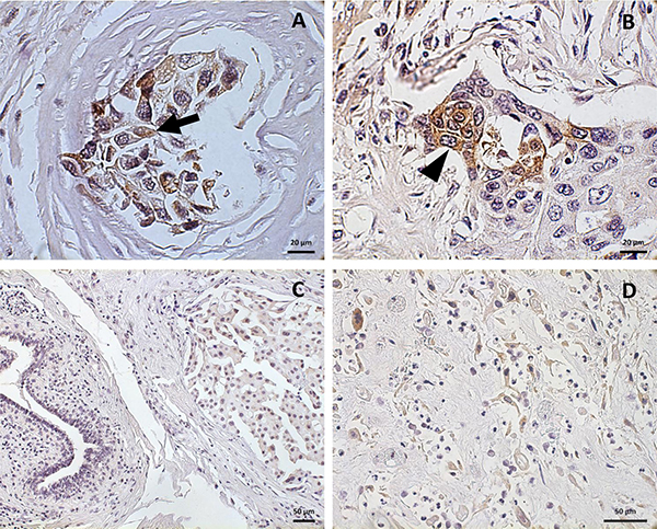 Pattern of GD2 localization in breast cancer.
