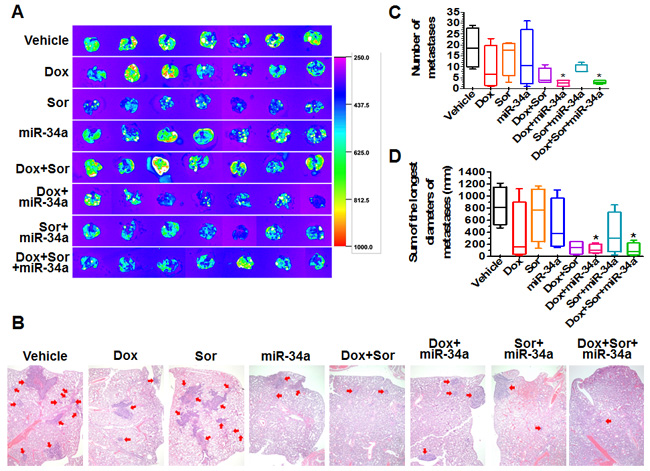 Doxorubicin, sorafenib and miR-34a triple-drug therapy sharply reduced pulmonary metastases from orthotopic osteosarcomas in mouse models.