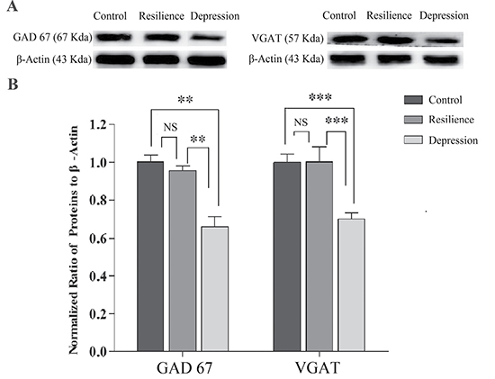 GABA synthesis, uptake and release are impaired in the nucleus accumbens of CUMS-induced depression mice, but not resilience mice.